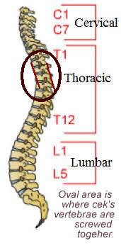 spine and ares that is screwed together